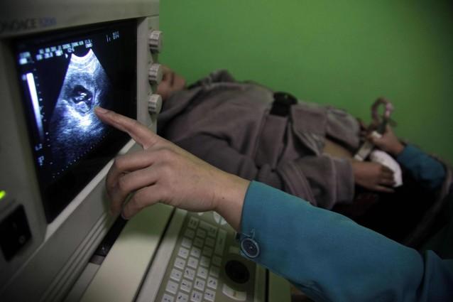 In arizona la gravidanza inizia due settimane prima del for Gravidanza indietro di due settimane
