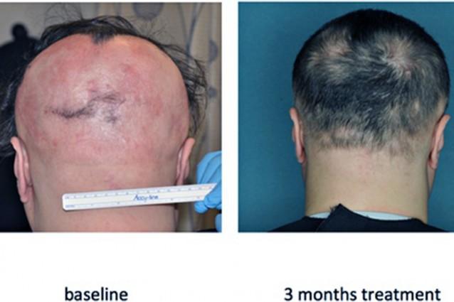 Ecco la pillola contro la calvizie: i capelli ricrescono in 4 mesi.