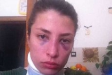 """Jessica, picchiata dall'ex ragazzo, posta le foto su fb: """"Ecco come mi ha ridotta"""""""