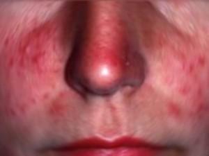 Un uomo soffre di un forte prurito al naso va dal medico for Interno naso