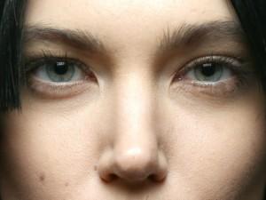 Il pigmentary nota su un corpo da farmaci