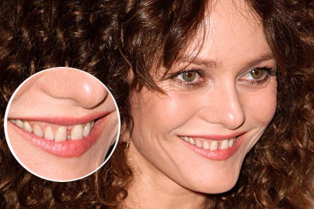 Foto che dimostrano come una bella dentatura possa cambiare un