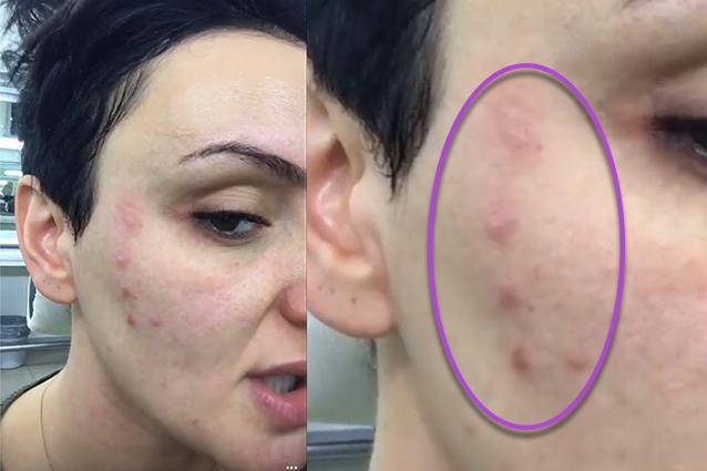 Unguento per riduzione di pori di faccia