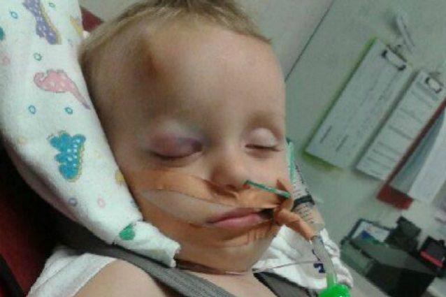 Dopo una caduta dal divano i medici gli rimuovono metà del cranio: la battaglia del bimbo