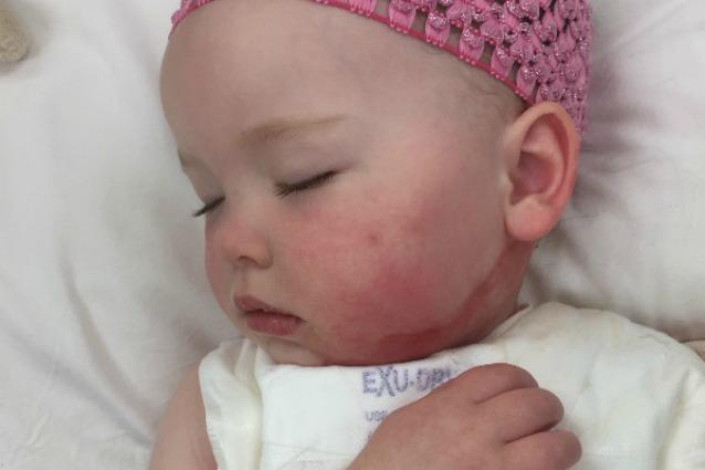 Si versa dell'acqua bollente sul corpo, a 21 mesi la bimba è ricoperta di ustioni