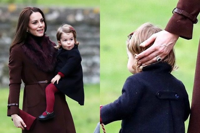 Kate Middleton e gli strani cerotti sulle mani