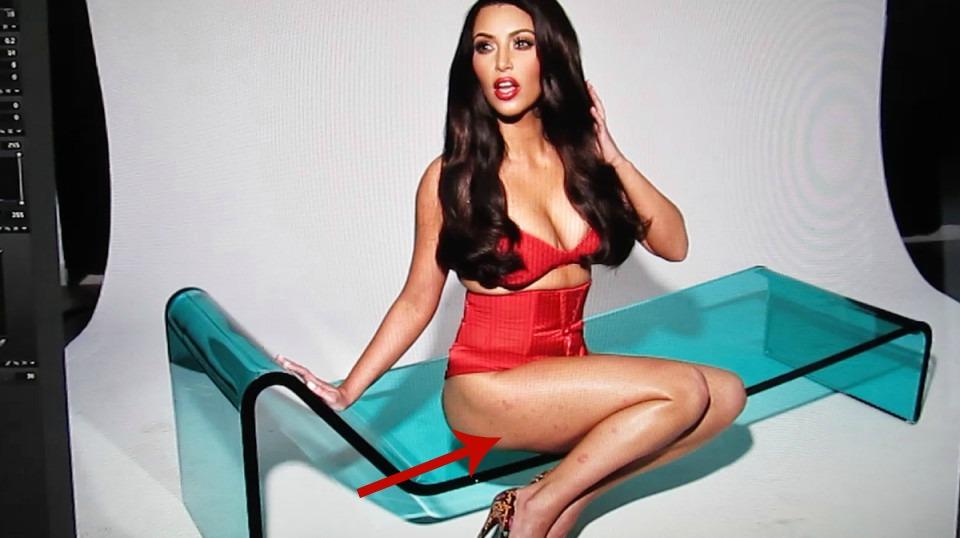Kim Kardashian malattia, la confessione della modella: