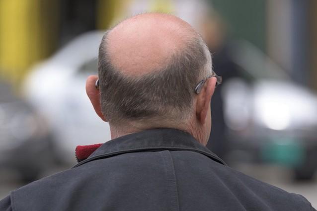 Perché i capelli una malattia abbandonano