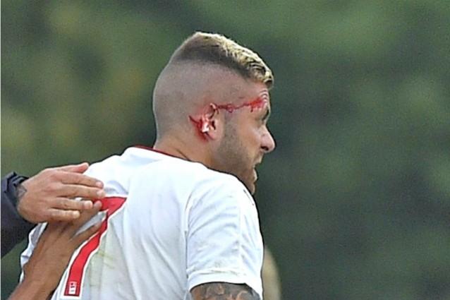 Menez, infortunio shock al debutto con il Bordeaux: reciso l'orecchio destro