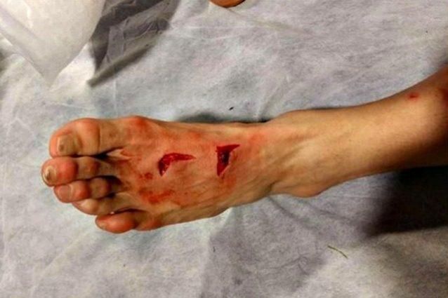 Porto-Juventus: Herrera ferito al piede da Lichtsteiner, 17 punti di sutura