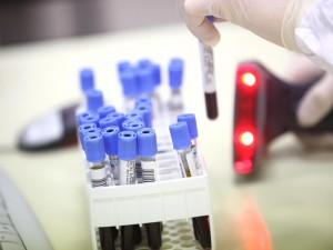 Un esame del sangue nel primo anno di età può rilevare l'autismo di un bambino