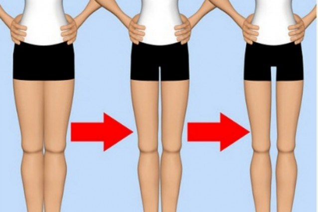 """""""Thigh Gap"""", la nuova ossessione delle adolescenti"""