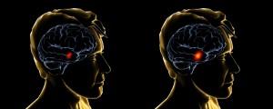 neuroimaging1