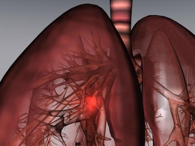 Scoperta italiana: una nuova sostanza in grado di bloccare i tumori