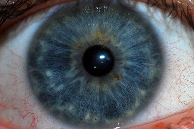 Chi ha gli occhi chiari avverte di meno il dolore for Dolore agli occhi