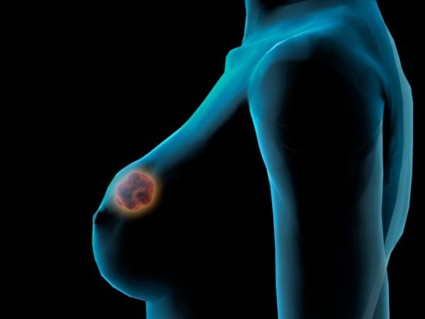 Cancro al seno, individuata la molecola che favorisce le metastasi
