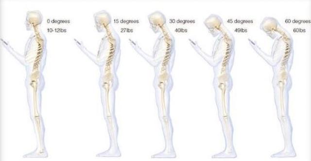 Esercizi di ginnastica correttiva a osteochondrosis