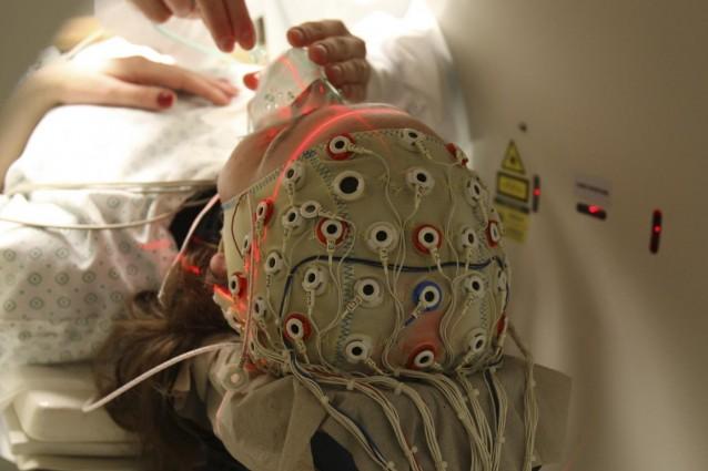 limiti sinapsi
