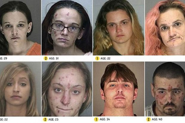 L 39 eroina e la sua conseguenza nel mondo autori fanpage - Sali da bagno droga effetti ...