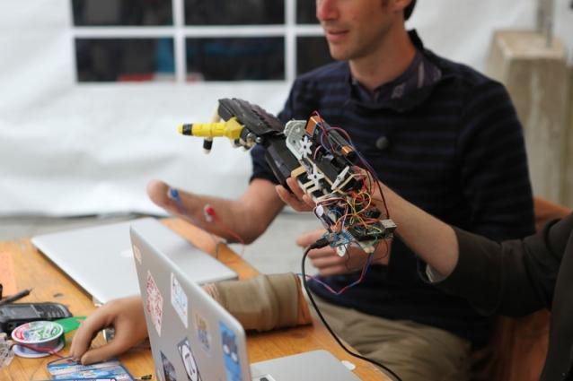 Ragazzo perde la mano in fabbrica ed inventa quella bionica a 1000 euro