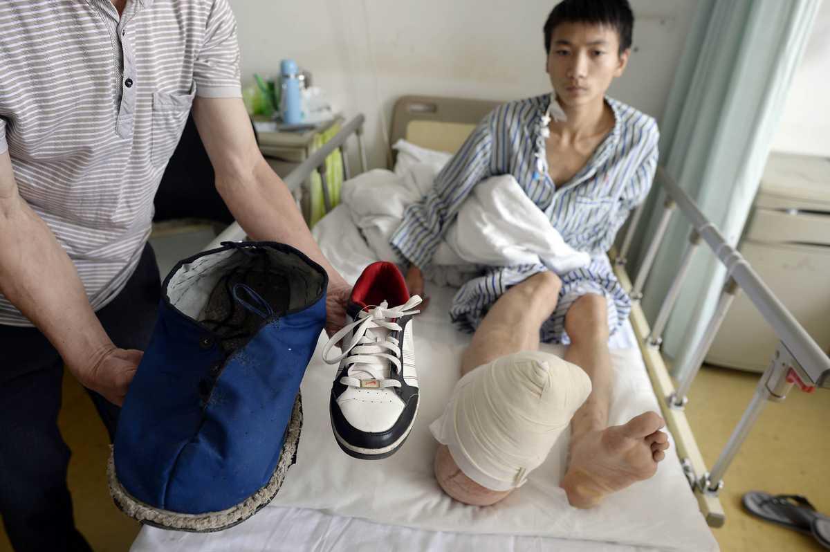 L'uomo con il piede gigante a causa di una rara sindrome