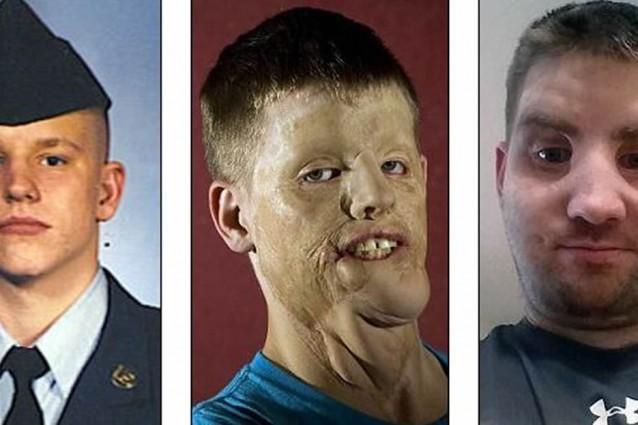 Si ustionò gravemente, dopo 15 anni ha un nuovo volto grazie ad un trapianto di faccia