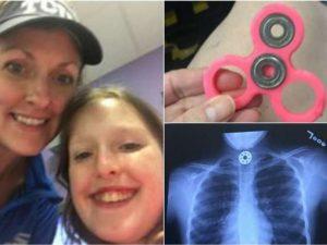 Un pezzo del Fidget Spinner le finisce in gola: bimba di 10 anni rischia di soffocare