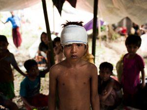 Un bambino ferito nel campo profughi allestito a Kutupalong nel Bangladesh (Unicef)