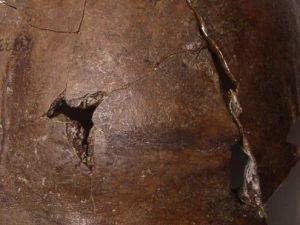 Questo cranio è appartenuto alla prima vittima di uno tsunami della storia