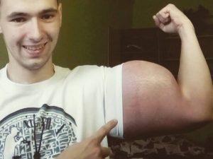 Kirill, il giovane che si inietta pericolosissimi oli per diventare come Braccio di Ferro