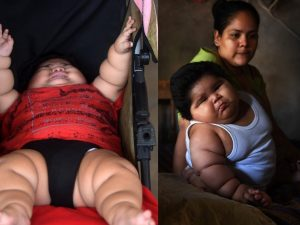 Luisito, il bambino che a 10 mesi pesa quanto il fratello di 9 anni: 28 kg