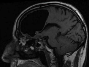 L'uomo che vive con una grossa bolla d'aria nel cervello: i medici pensavano fosse un ictus