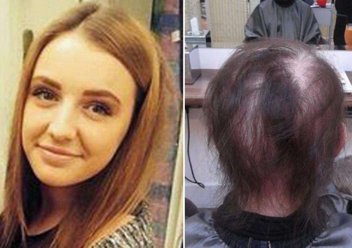 A 15 anni perde tutti i capelli, il racconto di Lucy: Mi ...