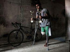 """Alaa, ciclista professionista, perde una gamba: """"Colpito dal"""