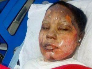 Pakistan: morta Asima, arsa viva dal fidanzato perché non voleva convertirsi all'Islam