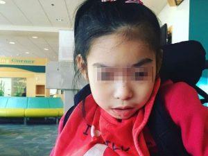 La storia di Yuna, bimba nata con una malattia rarissima che la sua mamma studia da anni