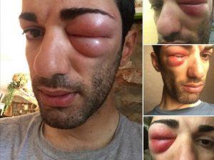 Il ciclista Danilo Celano sfigurato dal Morso di una vespa. Ecco cos'è ...
