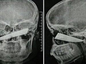Un coltello di 10 cm gli trapassa la faccia: la radiografia