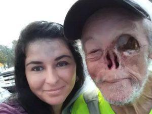 Perde naso e occhi a causa del cancro, costretto a lasciare un negozio: ...