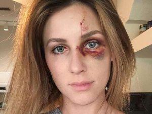 Melissa Gentz, 22 anni (Instagram).