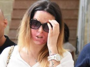 Gessica Notaro, al processo rivede l'ex che l'ha sfregiata c