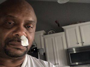 Per 5 anni gli cola il naso: pensa a un raffreddore, ma in r