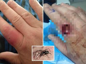 """""""Poteva uccidermi"""", 37enne perde quasi un dito dopo il morso di un ragno"""