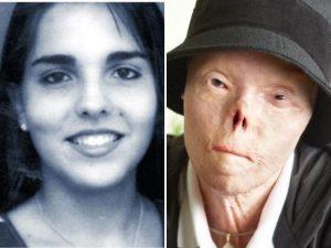 È morta a 40 anni Jacqui Saburido, era il volto della campag