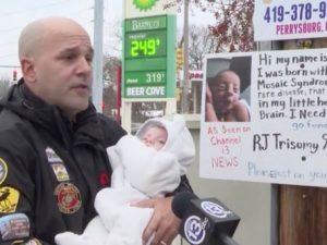Il bimbo ha una malattia rara, insulti choc fuori casa sua:
