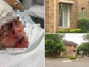 Bisnonna massacrata di botte da uno sconosciuto nella casa d