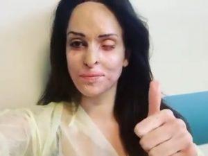Sfregiata dall'acido, Gessica Notaro in ospedale mostra in u