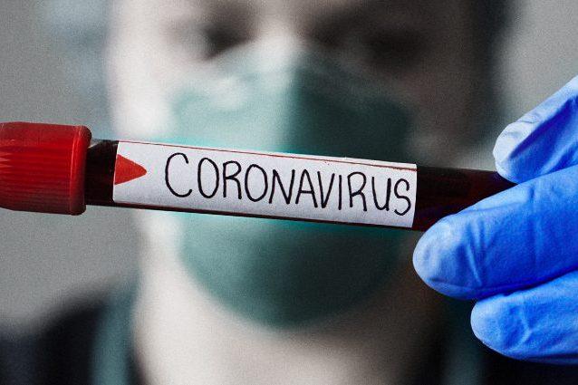 Sette cose che ci ha insegnato il Coronavirus