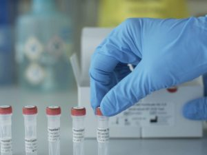 "Coronavirus, virologo: ""Dai test possibile falso negativo an"
