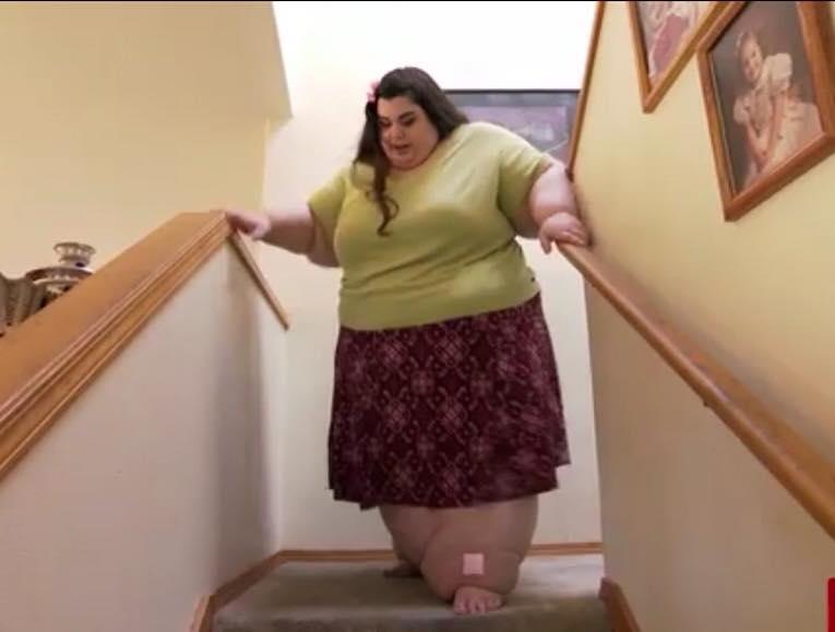 bypass gastrico perdita di peso